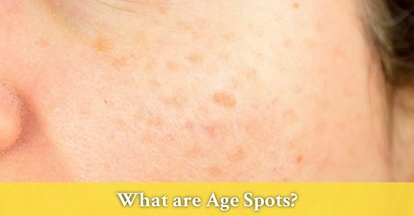 what are age spots